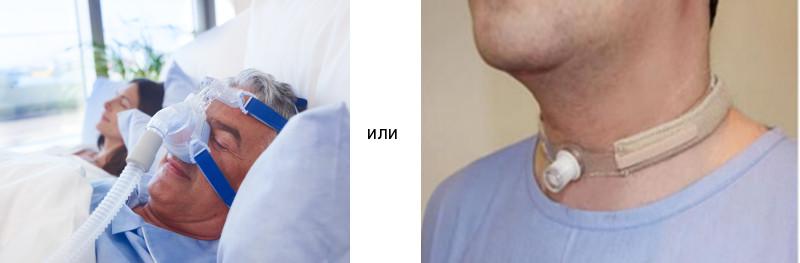 Существует ли сегодня реальная альтернатива СиПАП-терапии при тяжелом обструктивном апноэ сна? Да, существует. Но какой вариант вы предпочтёте?