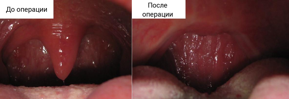 Классическое хирургическое вмешательство на мягких тканях глотки направлено на увеличение просвета верхних дыхательных путей