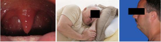 Увеличенный небный язычок, ожирение и аномальное строение челюсти – вот основные, но не единственные причины храпа и обструктивного апноэ.